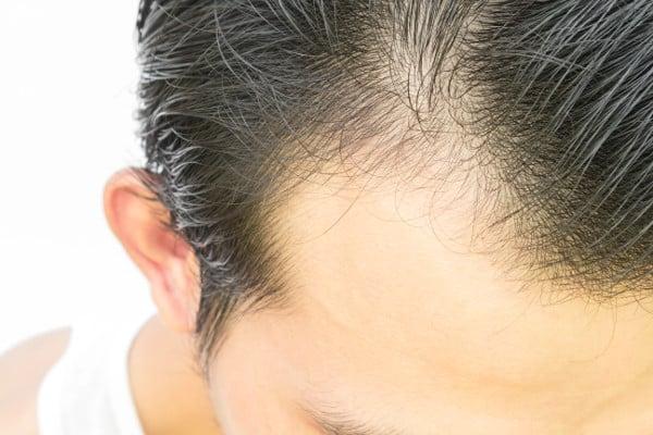 El transplante de cabello