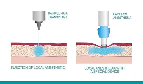 Anestesia senza ago con la tecnologia Comfort-in solo da Rep Hair Clinic.