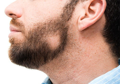 Alopecia areata barba