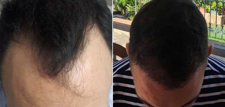Prima e dopo: i risultati del trapianto di capelli in Turchia