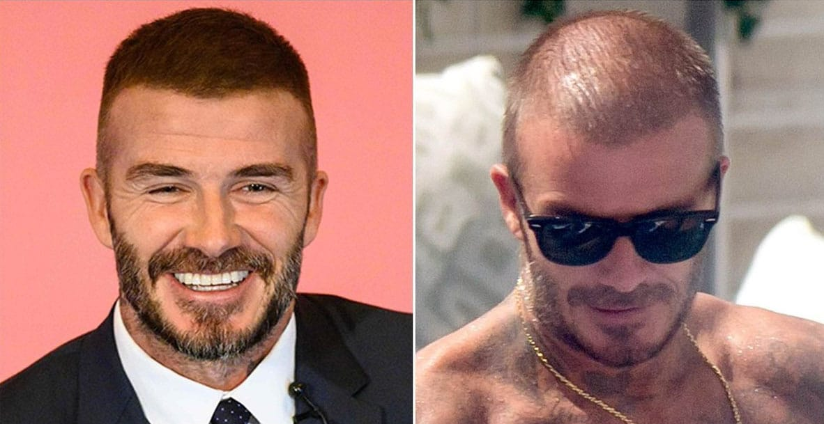Celebrities With Hair Transplant Elon Musk And David Silva Rephair