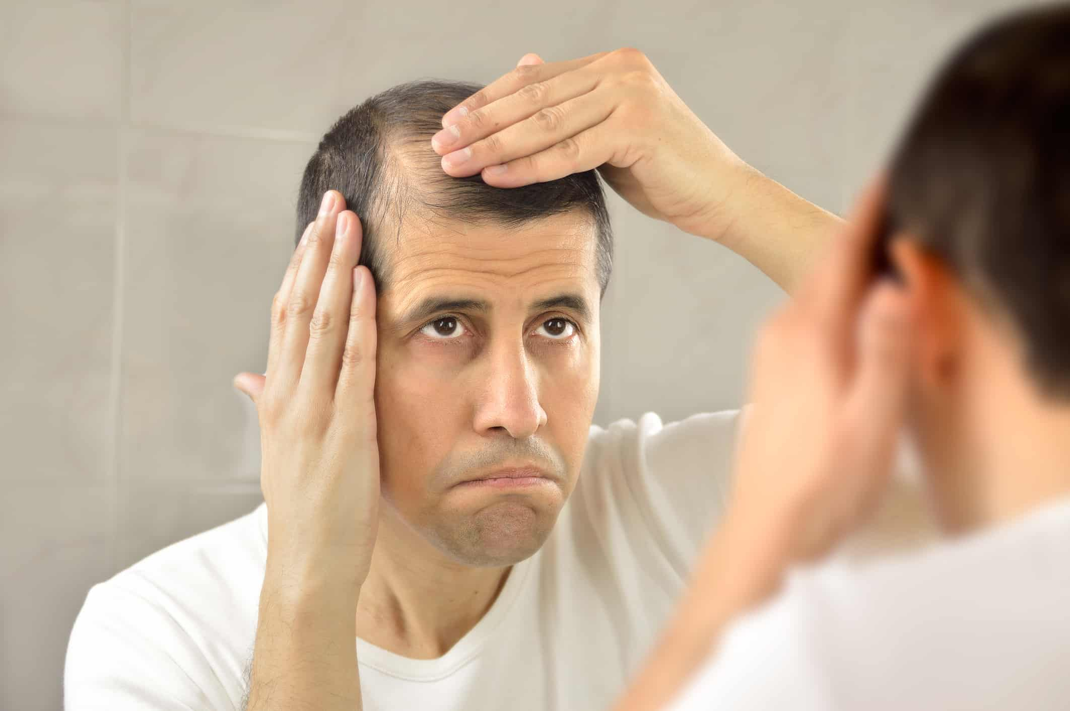 Causes of receding hairline