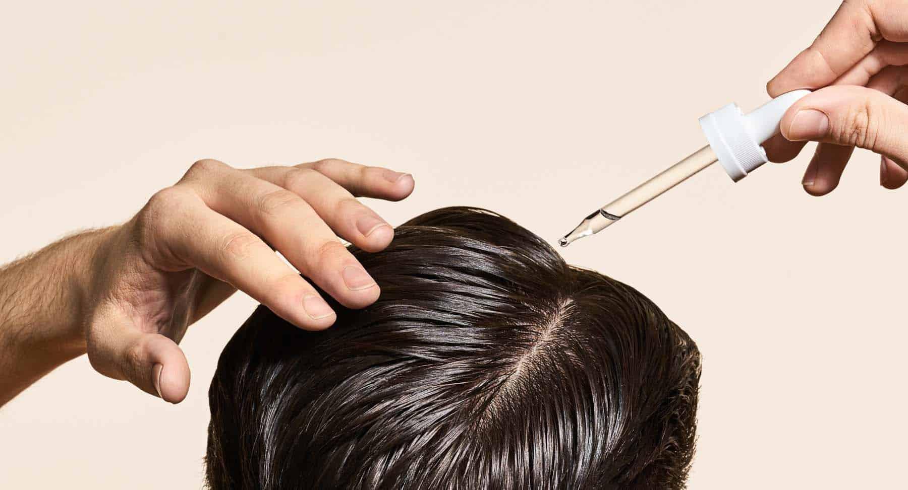 Trapianto di capelli: Toppik e Finasteride funzionano?