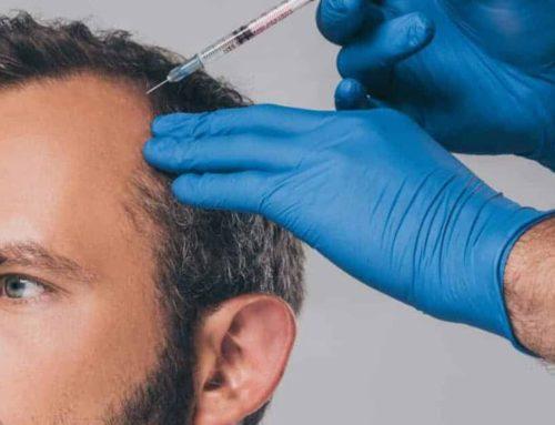 Prp capelli: una cura alternativa alle calvizie. Funziona davvero?