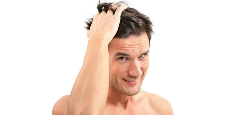 Trapianto di capelli eseguito con tecnica FUE.