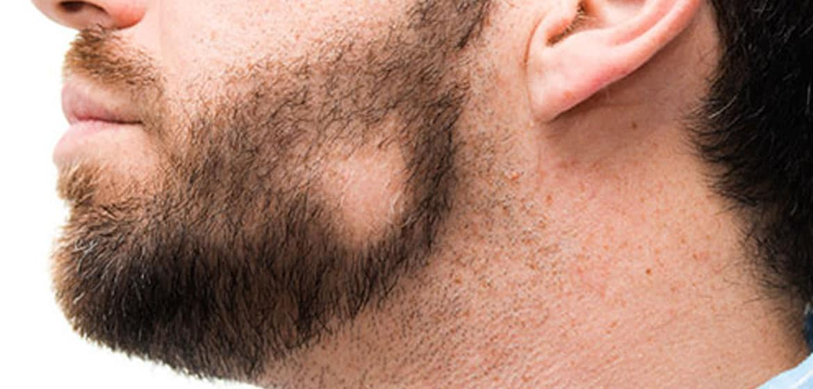 Prevention of types of Alopecia