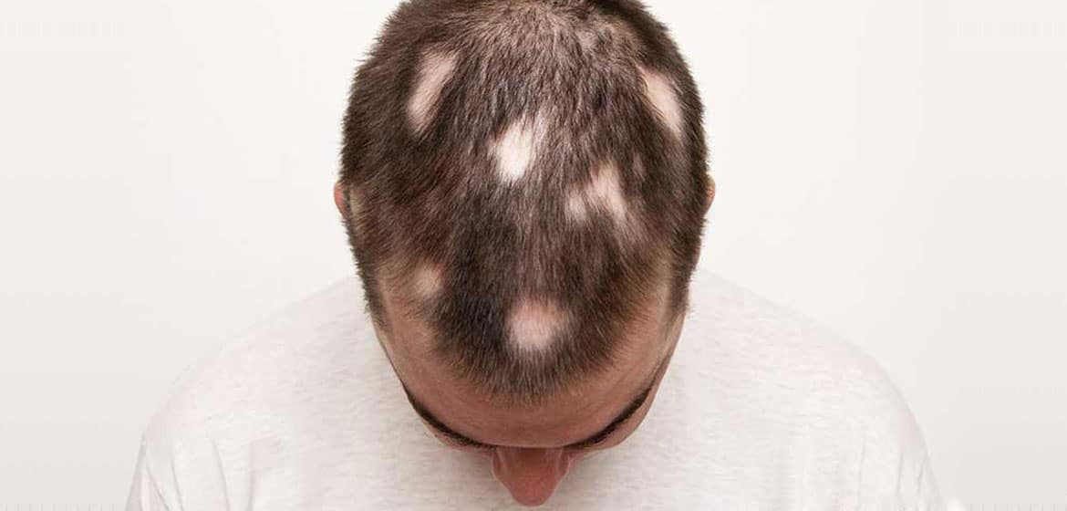 Major types of Alopecia with Causes Treatments and Prevention