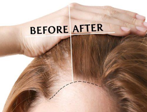 Alopecia femminile: le calvizie non colpiscono solo gli uomini.
