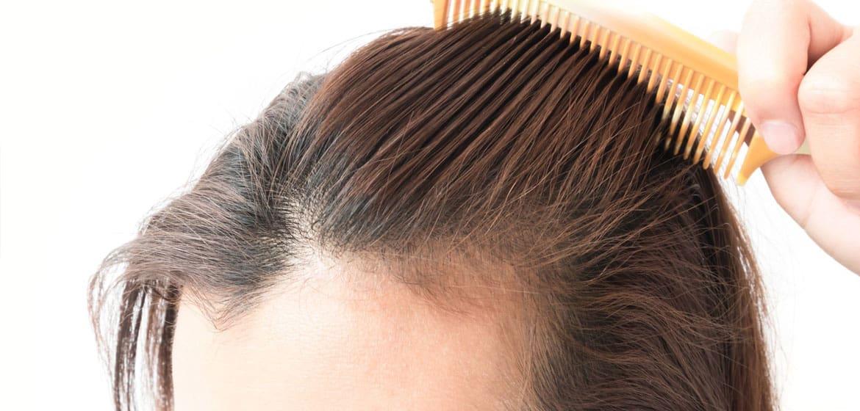 Alopecia areata femminile: analizziamo tutti i dettagli.