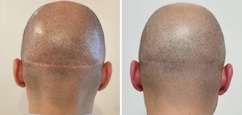 Hair Transplant on Scars