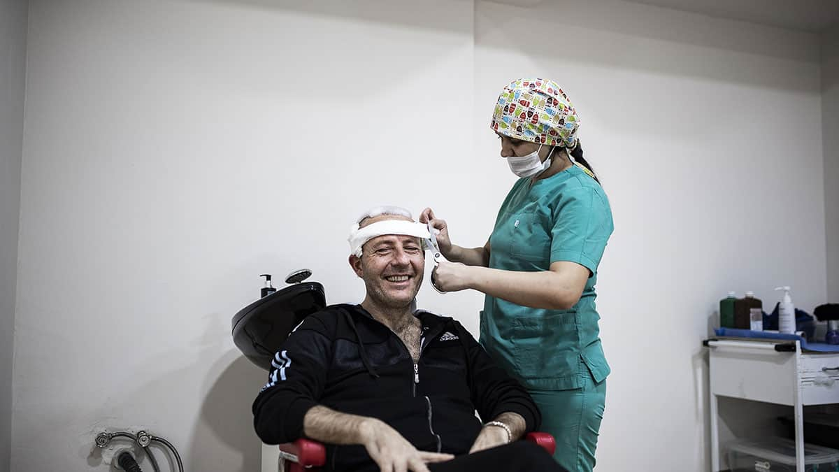 Hair Transplant Success Rate: Practices