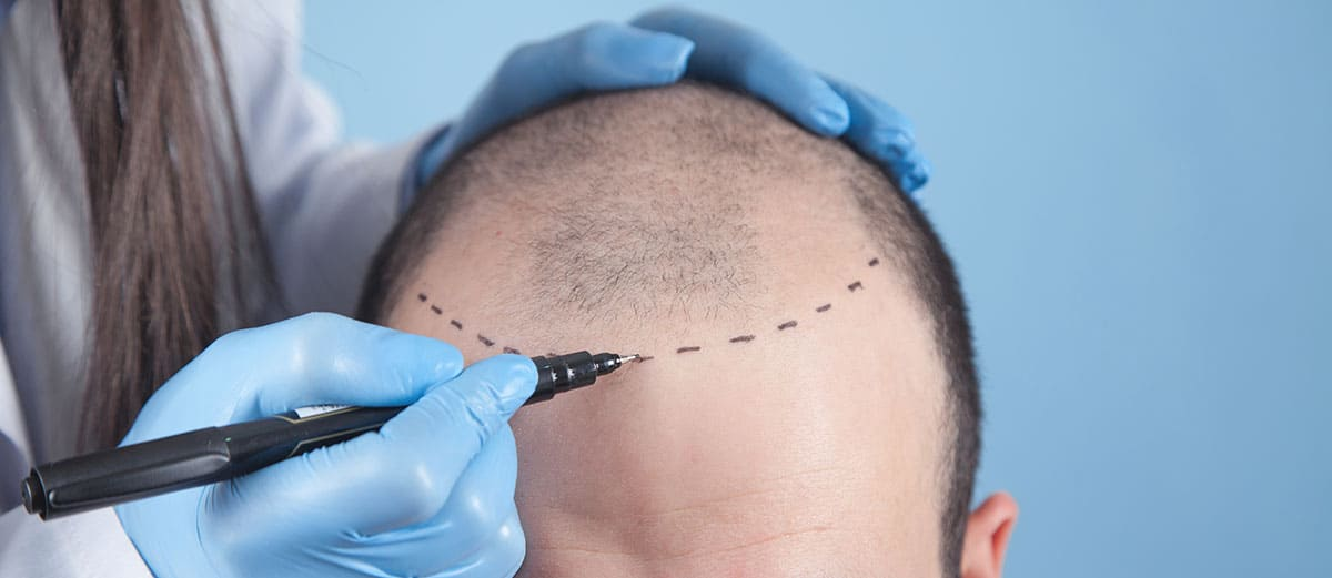 A hair transplant can last permanently whether a client receives an FUE or FUT procedure. The permanent zone from which hair follicles are taken earned its name because the hair is genetically programmed not to fall out.