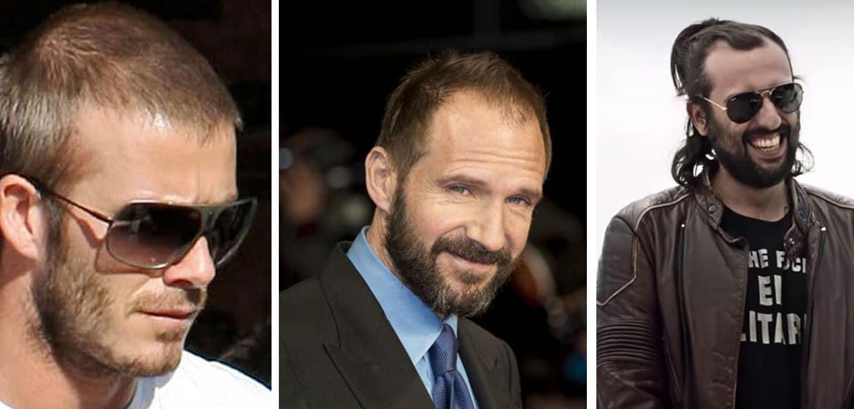 mature hairline celebrity david beckham