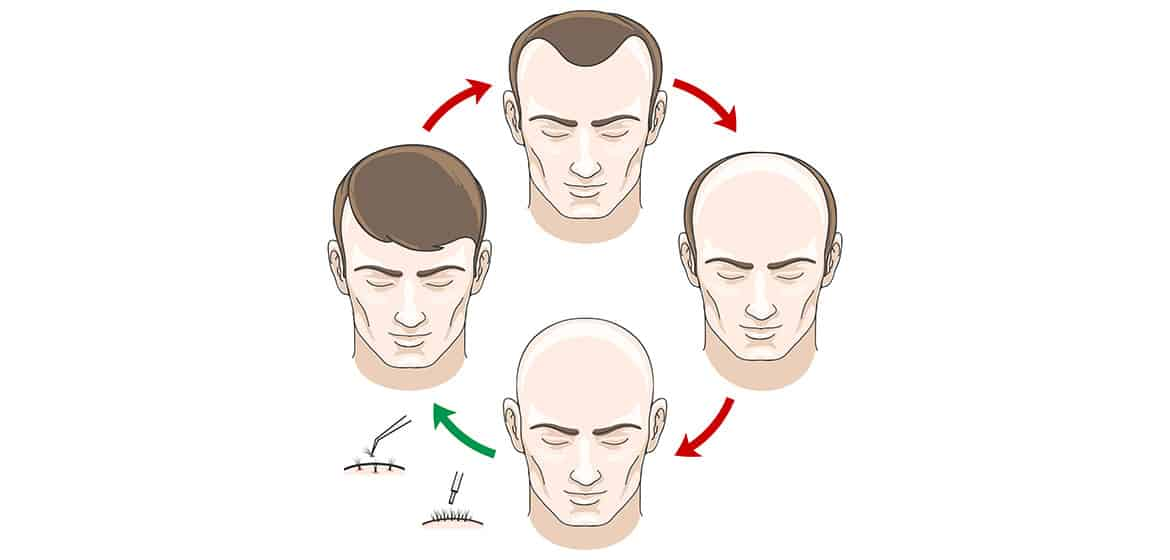 Duration of Mature Hairline. Cycle of mature hairline