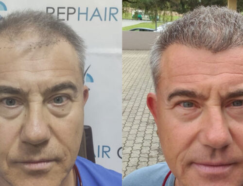 Hair implants technique
