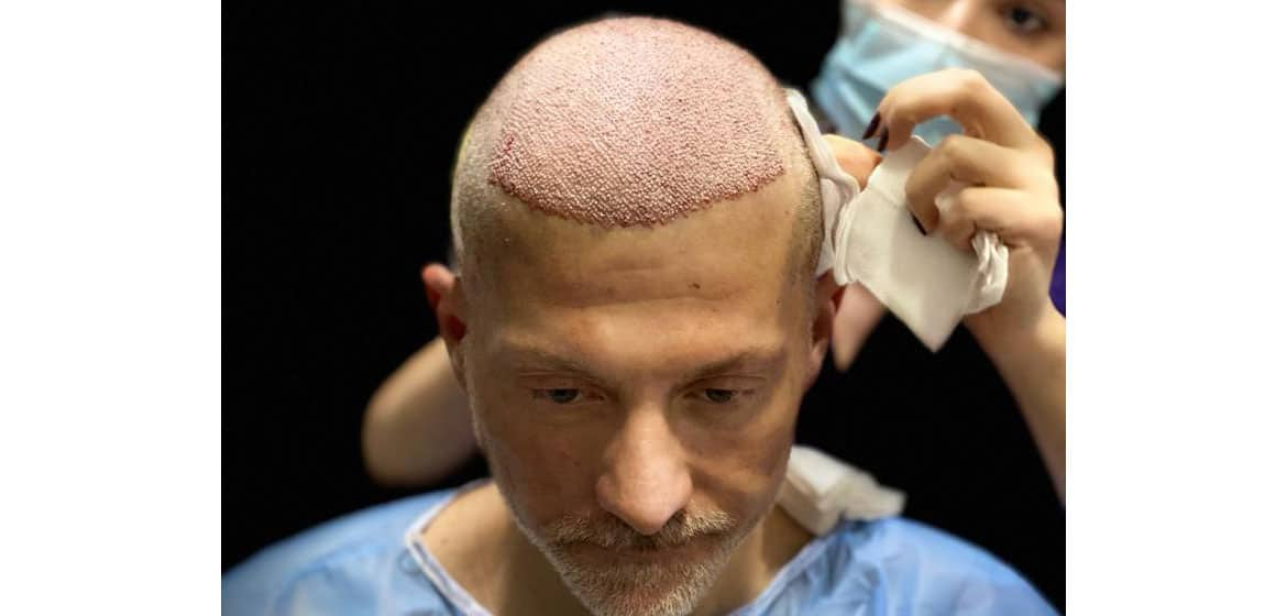 Hair restoration with PRP and stem cells techniques